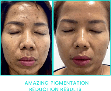 Peppermint Peel pigmentation reduction results